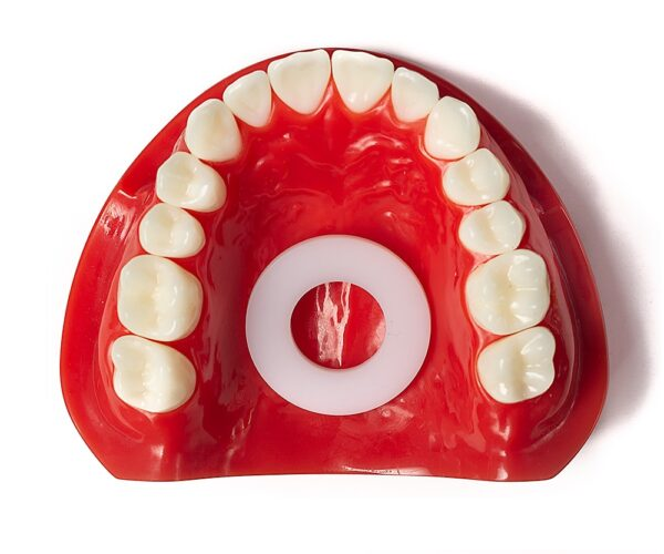 mewing appliance in dental model
