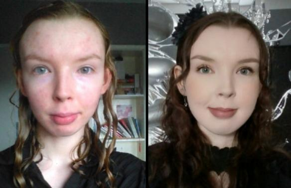 mewing before after result age 20