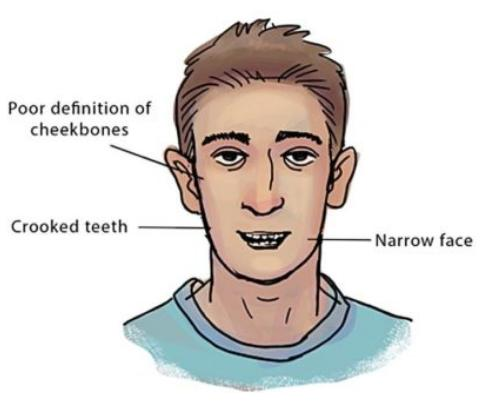 recessed maxilla unattractive face 0