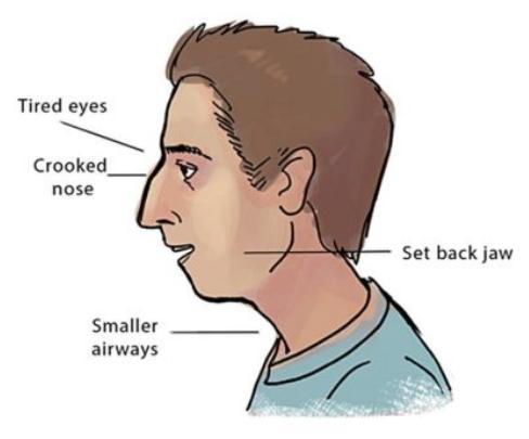 recessed maxilla unattractive face 1